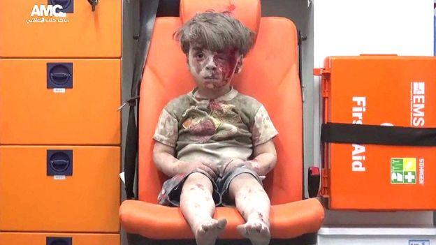 Omran, el niño rescatado de un bombardeo en Alepo que se convirtió en un símbolo del horror en Siria