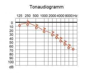 Tonaudiogramm_w_sens